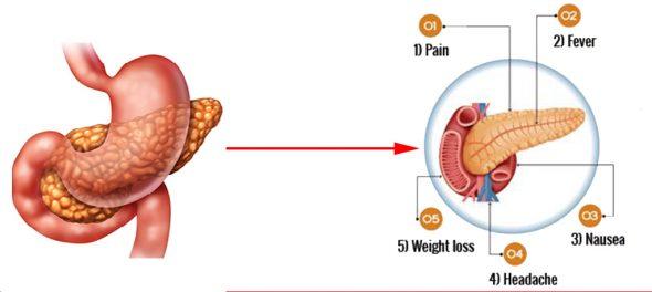 What Happens To Pancreatic Function In Pancreatic Diseases?