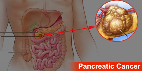 What Causes Pancreatic Cancer and Types of Pancreatic Cancer?