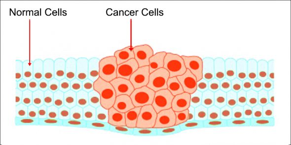 What is Cancer and How Is Cancer Treated?