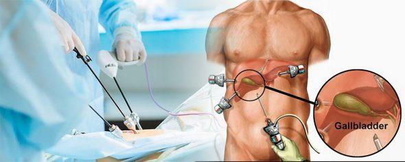 Laparoscopic Gallbladder Surgery for Gallstones