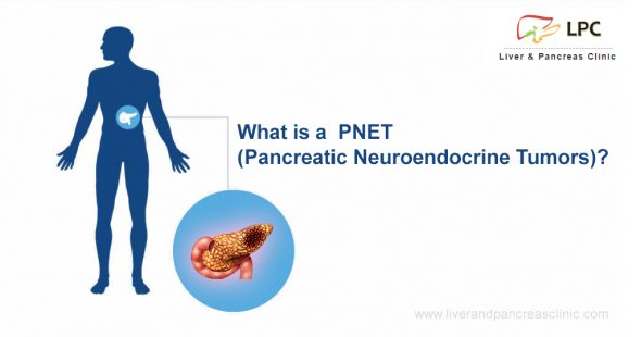 What is a PNET ( Pancreatic neuroendocrine tumors)?