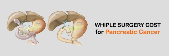 Whipple Surgery Cost in Mumbai, India