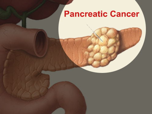 How-Pancreatic-Cancer-Diagnose