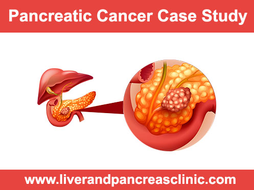 Case Studies: Pancreatic Cancer